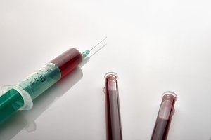 Syringe and vials with blood on tabl