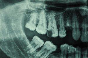Human teeth xray