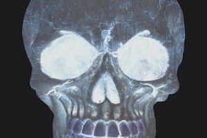radiography of an human skull