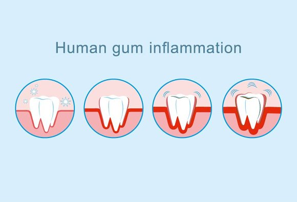 Human gum inflammation vector