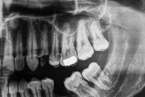 Human teeth xray in black and white