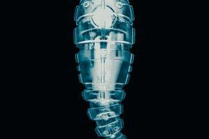 Robot Parasite Radiograph