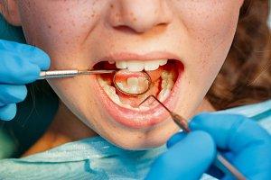 Children dentistry. Dental clinic