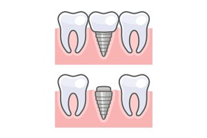 Dental Implant and Tooth Set