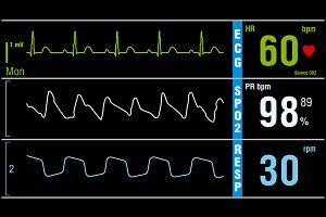 Patient monitor displays vital signs