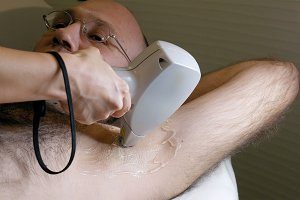 Man gets laser hair removal treatment underarm