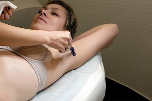 Shaving woman's underarm before laser hair removal