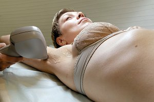 Woman gets laser hair removal treatment underarm