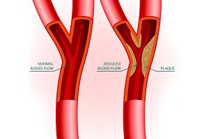 Blood Vein Image