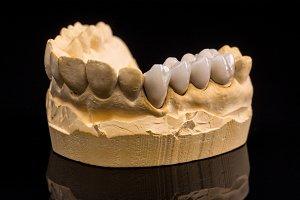 False teeth