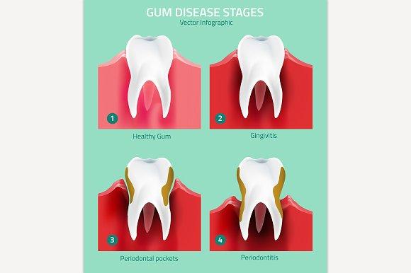 Teeth Infographic
