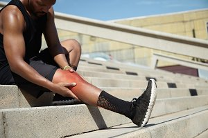 Young sportsman with strong athletic legs holding knee after suffering ligament injury during running workout, sitting on stairs outdoors rubbing red sore area with painful expression on his face