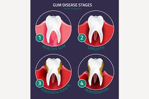 Teeth infographic Gum Disease Stages