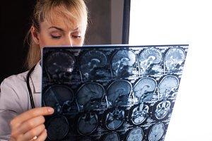 woman holding mri of a human brain