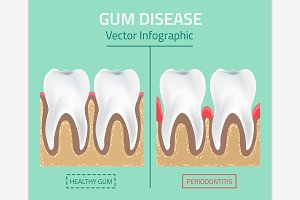 Gum Disease Stages