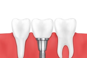Dental implant and normal tooth