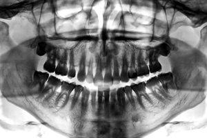 Dental Scan X-ray