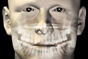 Male Dental Scan