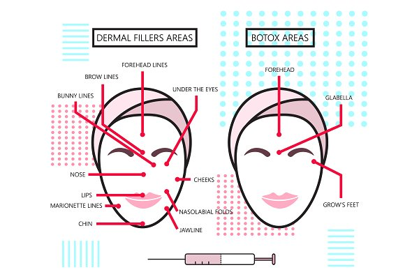 Infographic about Dermal Fillers