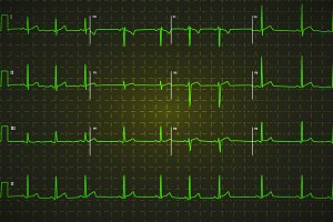 Typical human electrocardiogram