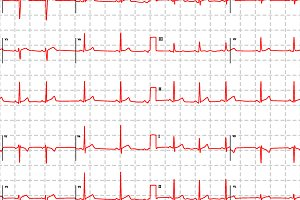 Electrocardiogram red graph pattern