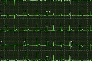 Electrocardiogram green graph
