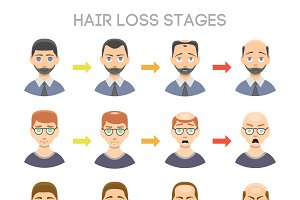 Vector hair loss stages