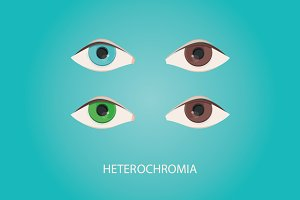 Illustration of heterochromia