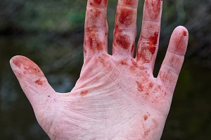 Minor but bloody trauma to wrist