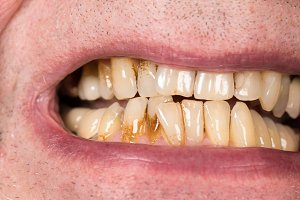 Discolored teeth of senior man