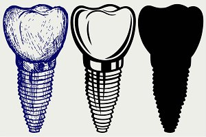 Tooth implant SVG