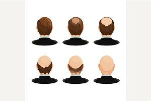 Alopecia concept.