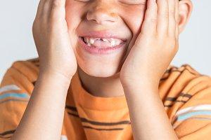 Boy showing missing teeth.