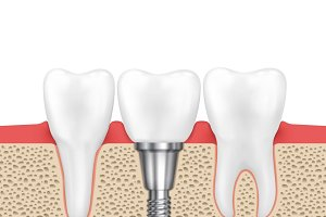 Dental human implant