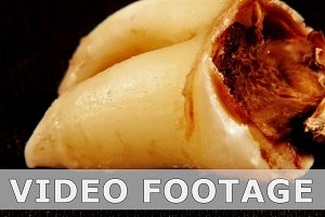 Looped: Damaged tooth - cavity dental caries decay