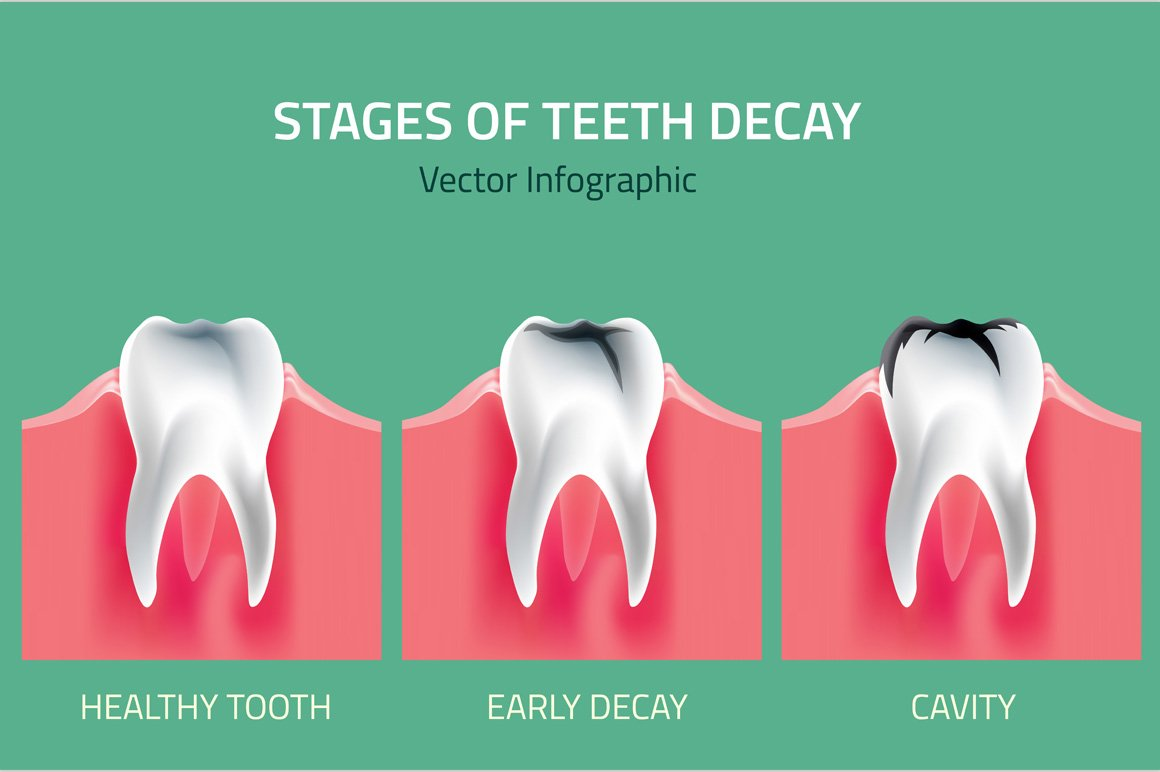 Stages of Teeth Decay ~ Illustrations ~ Creative Market