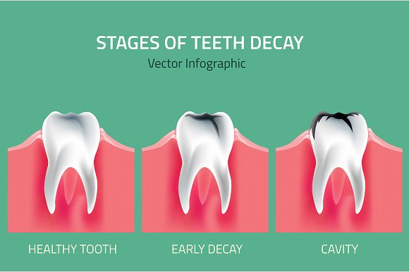 Stages of Teeth Decay