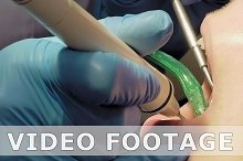 Woman ultrasonic tooth plaque odontolith removing