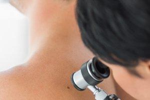 Doctor examining melanoma on back of man