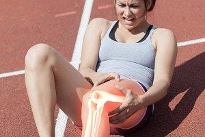 Highlighted bones of injured runner