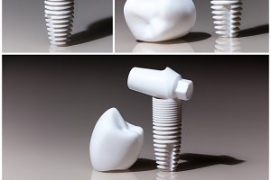 Dental implant dentist, tooth