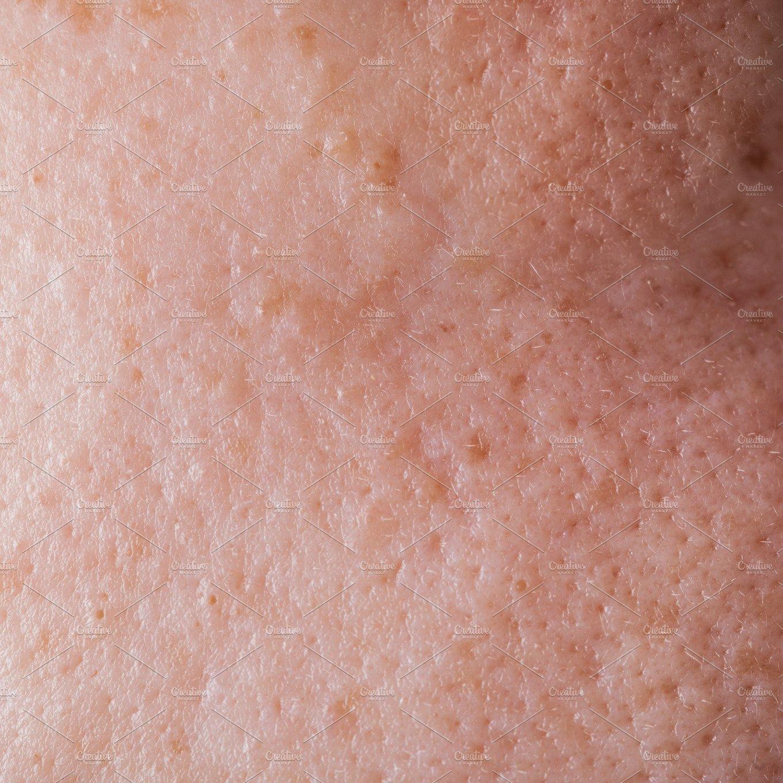 Human face skin texture ~ People Photos ~ Creative Market