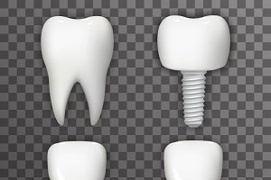 Dental Implant Realistic