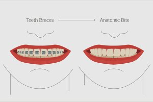 Teeth Braces Image