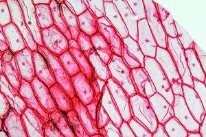 Onion cells