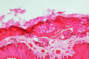 Epithelium section