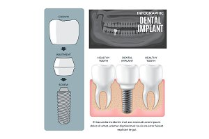 Infographic Dental Implant Structure Info Poster