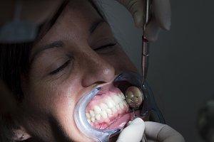 Dentist examining patient teeth