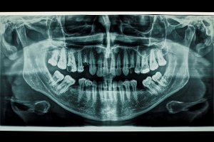 teeth panoramic xray