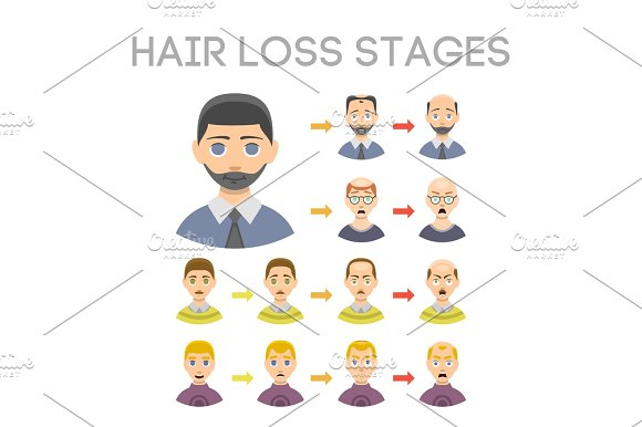 Information Chart Of Hair Loss Stages Types Of Baldness Illustrated On Male Head Vector